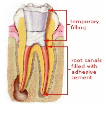 Root Canal Treatment – Step 2