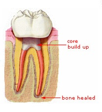 Root Canal Treatment – Step 4
